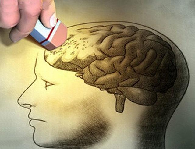 الکلی ها بیشتر آلزایمر می گیرند