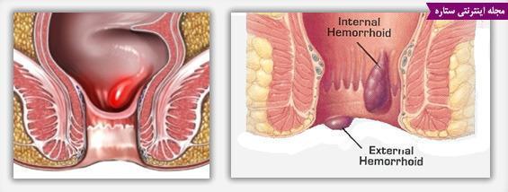 درمان بیماری بواسیر یا هموروئید