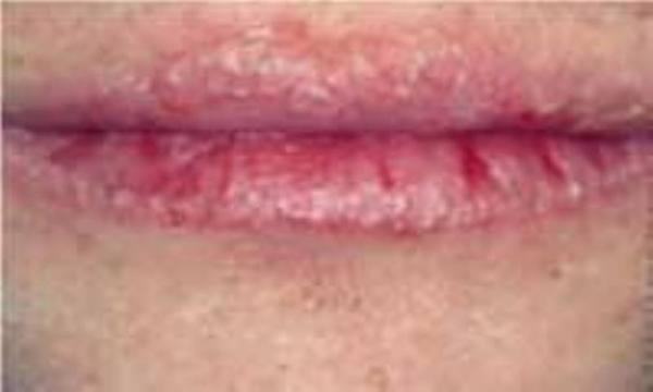 حساسیت به رژ لب و پوسته ریزی لب ها